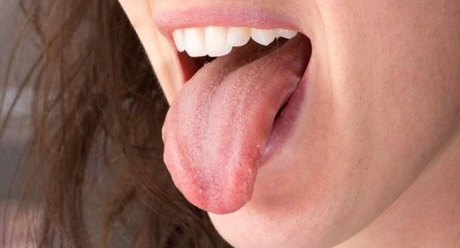 10 признаков рака полости рта, которые нельзя пропустить