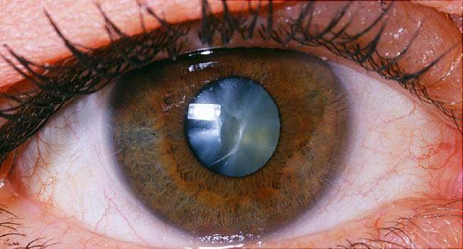 7 вещей, которые цвет глаз говорит о вашем здоровье