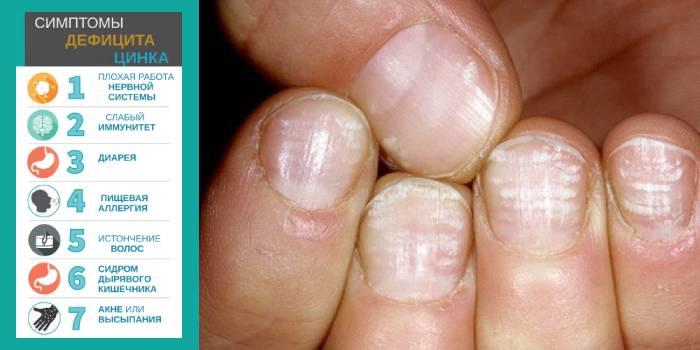 Как узнать состояние здоровья по руке