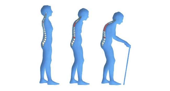 9 важных фактов об остеопорозе