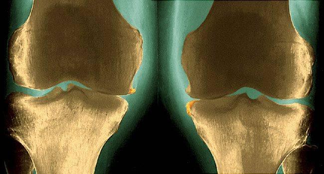5 побочных эффектов ревматоидного артрита, о которых вы должны знать
