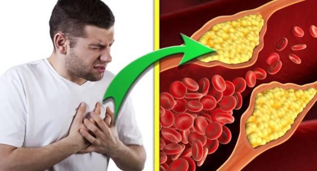 8 шагов для снижения уровня холестерина в крови