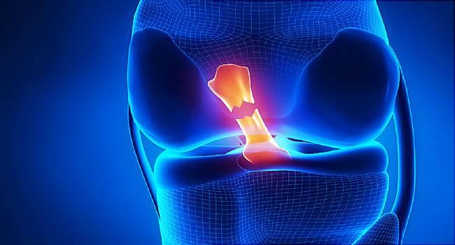5 причин скрипа коленей