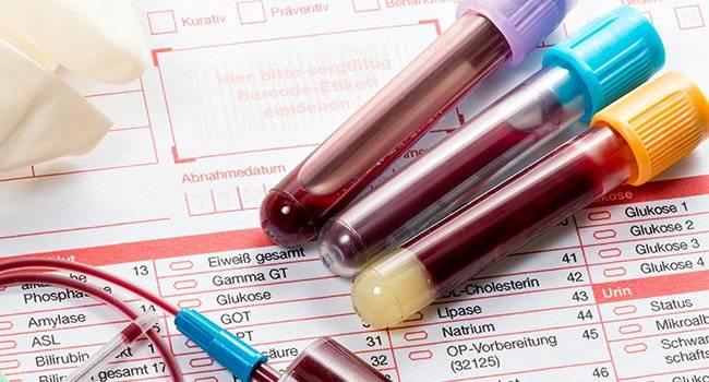 10 вещей, которые врач не скажет о вашем анализе крови