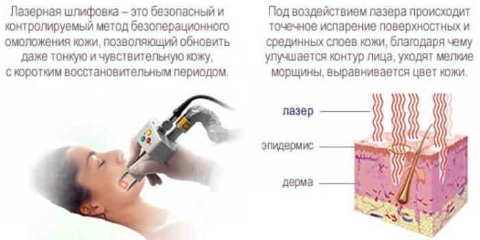 Плюсы процедуры шлифовки лазером