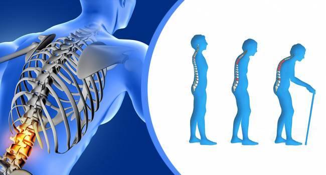 Что вам нужно знать о спинальном артрите
