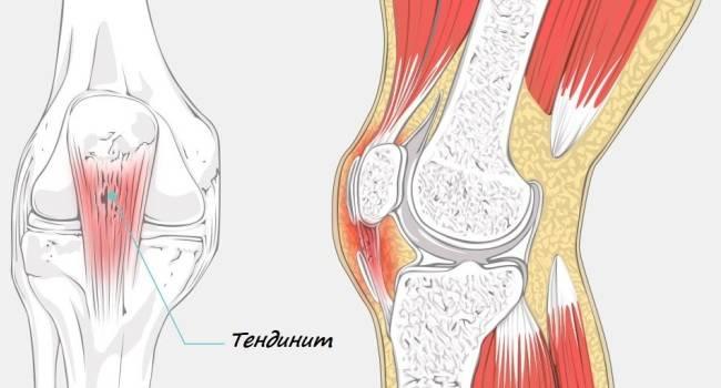 6 причин болей в коленях