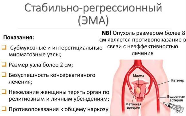 Чем отличается киста от миомы