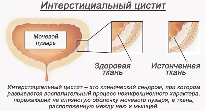 Признаки мочеполовой инфекции