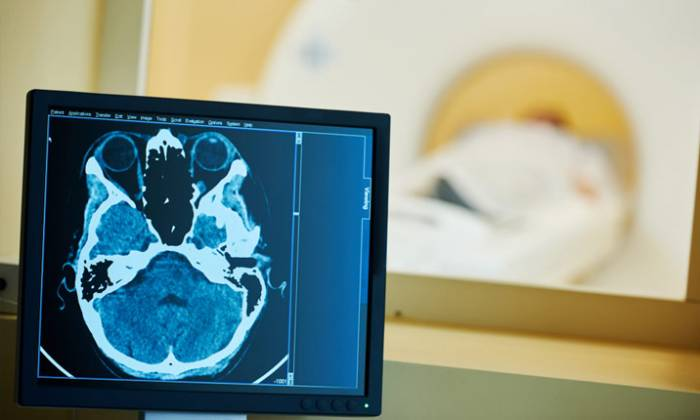 6 вопросов о головокружении