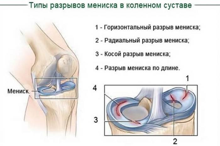 Почему болят колени и что с этим делать