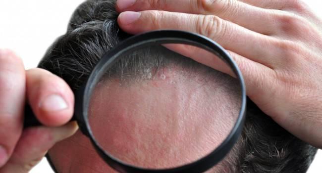 9 причин зуда кожи головы