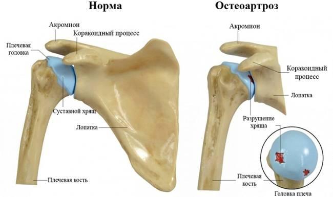 3 распространенные причины болей в плече, способы их лечения