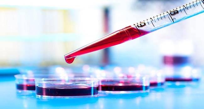 Что нужно знать об уровне кислорода в крови