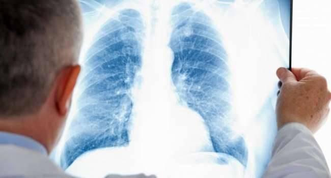 6 ложных симптомов коронавирусной инфекции