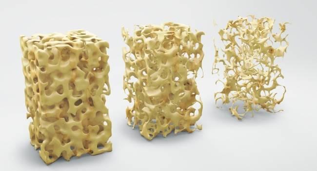9 основных фактов об остеопорозе