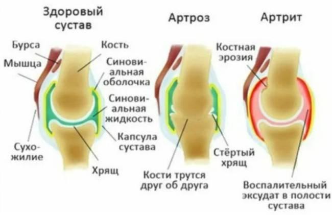 Разница между остеоартритом и ревматоидным артритом