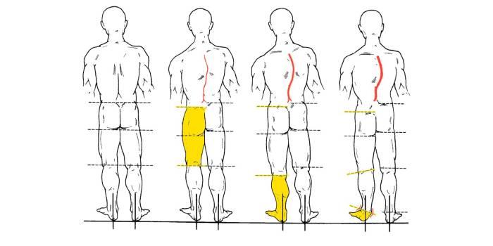Разная длина ног при сколиозе
