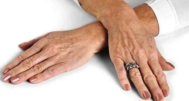 8 проблем, о которых говорят ваши руки