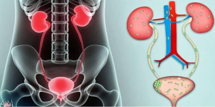 5 симптомов чрезмерного роста грибков Candida, как с ними справиться