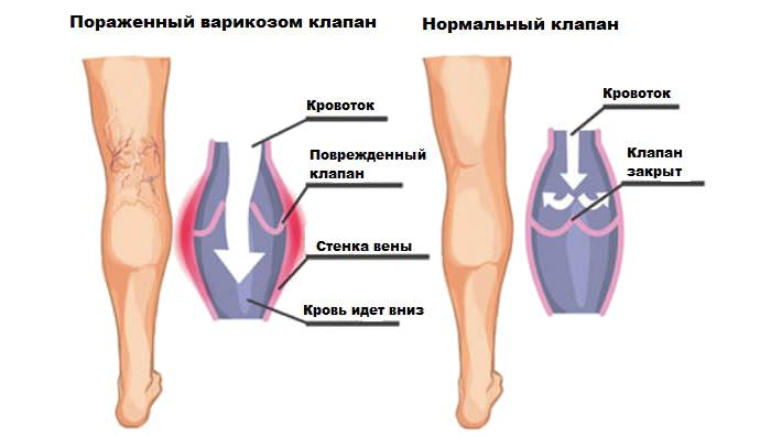Симптомы заболеваний по состоянию ног