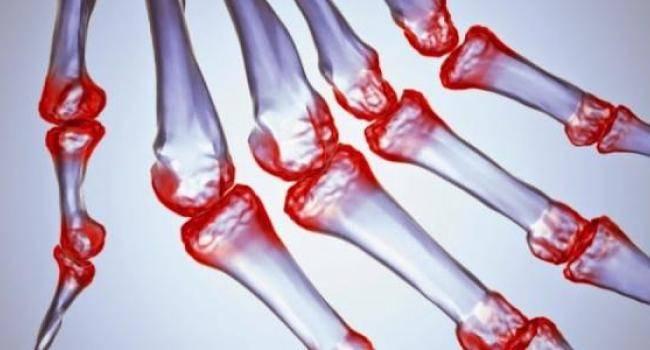 9 ранних признаков ревматоидного артрита