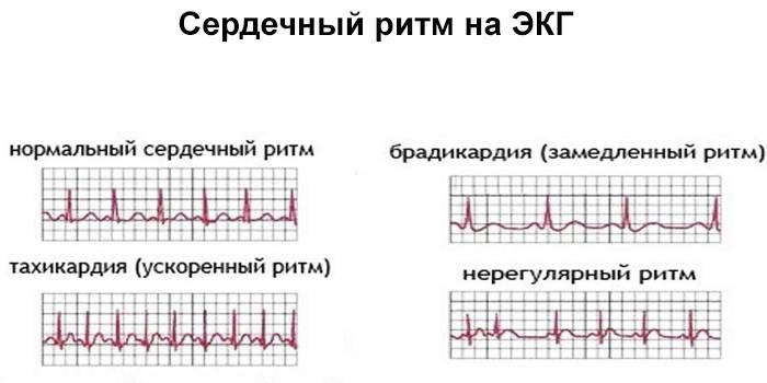 Сердечный ритм на ЭКГ