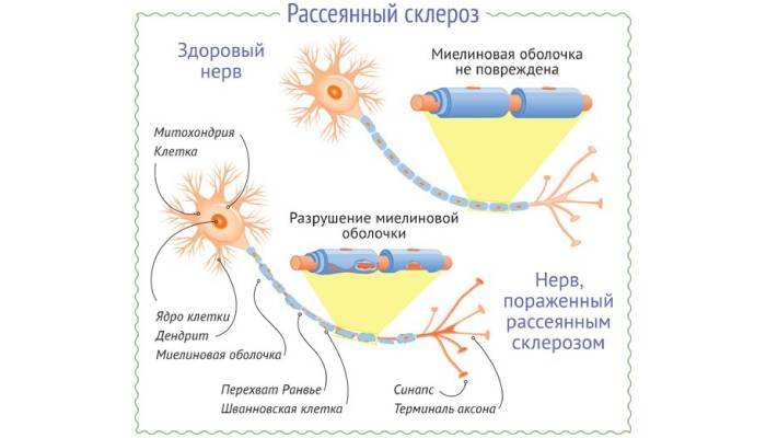 Признаки рассеянного склероза