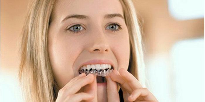 Девушка отбеливает зубы осветляющим гелем
