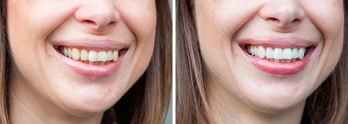 Результат отбеливания зубов в домашних условиях