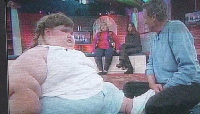 Джессика Леонард – самый толстый ребенок мира
