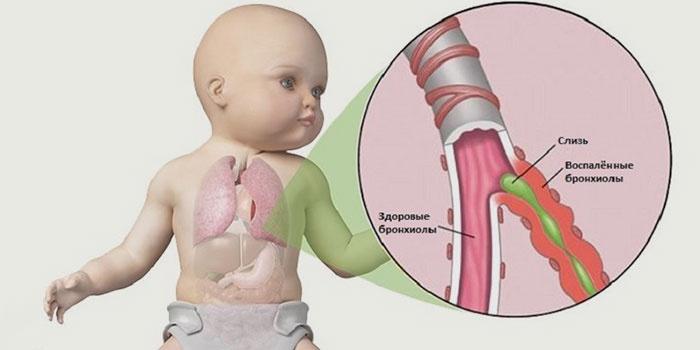 Что происходит в легких ребенка при бронхите