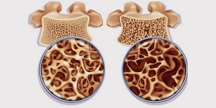 Сравнение здоровой и больной кости