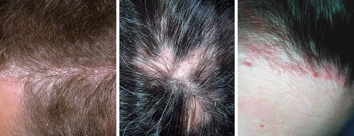 сильно шелушится кожа головы