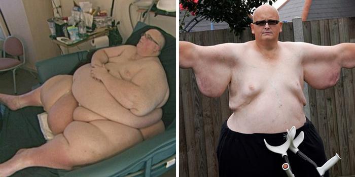 Самый толстый человек в мире 2015: история жизни, вес, фото и видео