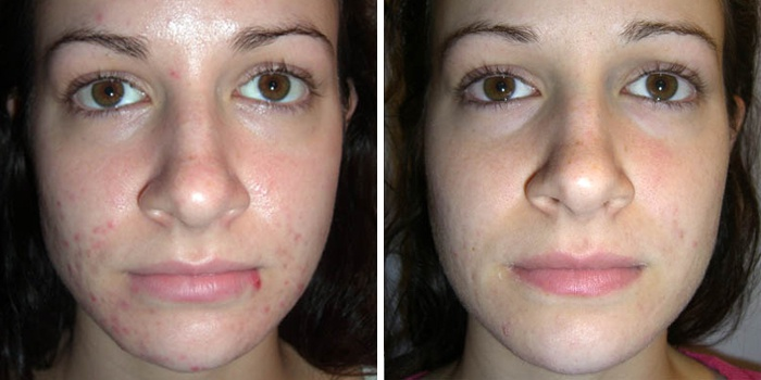 Девушка до и после очищения