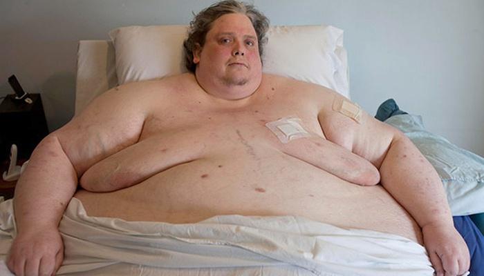 Самый тяжелый человек мира – Кит Мартин