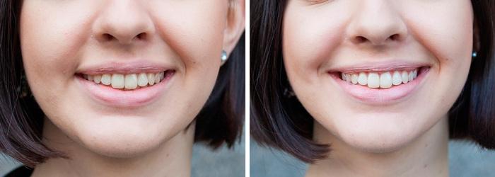 До и после отбеливания зубов дома