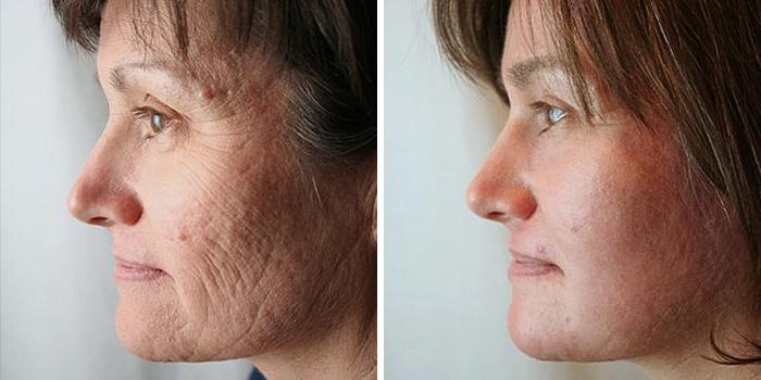 Лицо до и после очищения