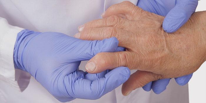 Врач осматривает пальцы, больные артритом