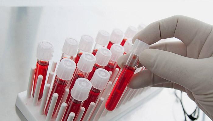 Лаборант достает пробирку с кровью
