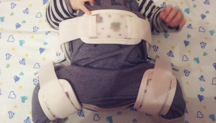 У новорожденного дисплазия тазобедренного сустава
