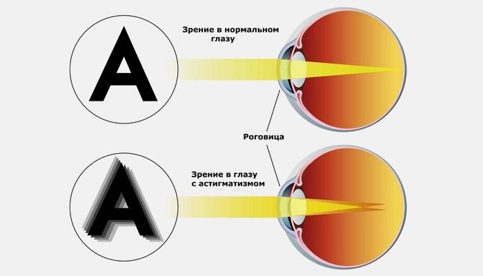 Контур буквы при нормальном зрении и астигматизме