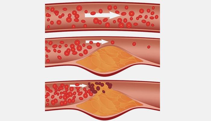 Холестерин в крови у мужчин