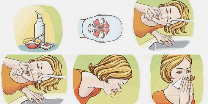Чем промыть нос при беременности в домашних условиях