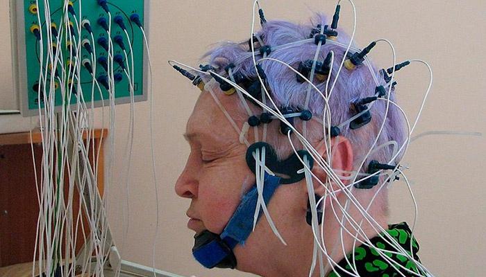 Процедура ЭЭГ головного мозга