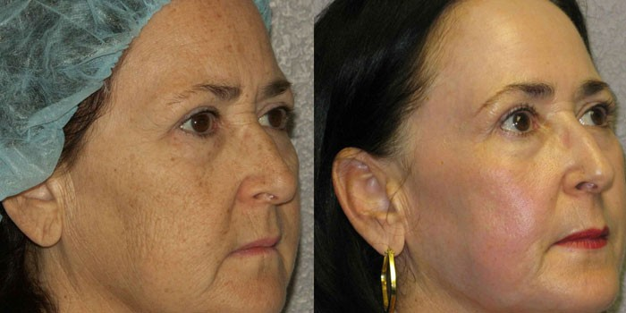 Лицо женщины до и после лазерного пилинга