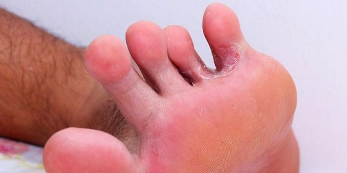 Грибок между пальцев на ноге у мужчины