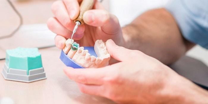 Зубной техник делает протез