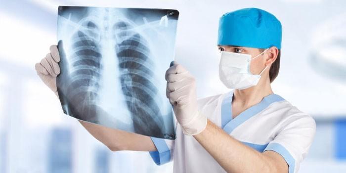 Медик смотрит на рентгеновский снимок